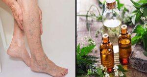 برخی از روش های طبیعی در درمان واریس