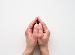 درمان های خانگی اگزمای دست