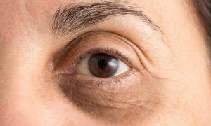 روش های درمانی پزشکی برای رفع سیاهی دور چشم: