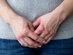 اگزمای دستی چیست؟