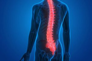راه درمان درد وسط ستون فقرات