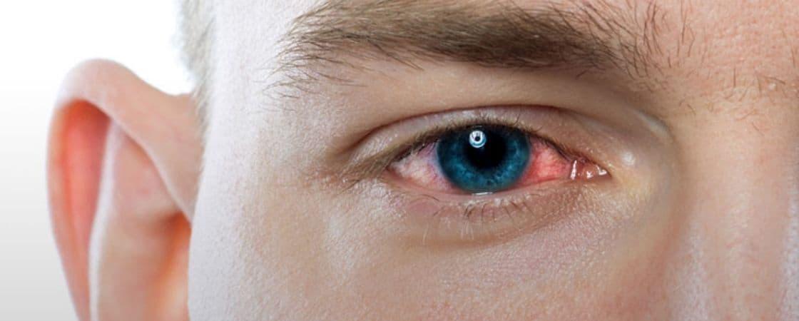 التهاب و عفونت های چشم