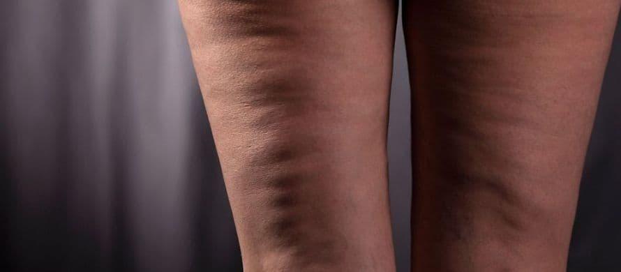 درمان سلولیت چگونه می باشد ؟